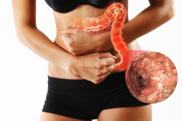 ¿Sufres de inflamación abdominal y de colitis nerviosa? Estos tips te darán solución